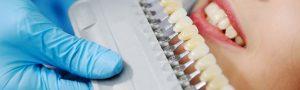Consejos para que las carillas dentales te duren mucho tiempo - Clínica Manuel Rosa