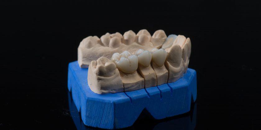 Estética dental en Córdoba: carillas y fundas dentales. ¿Cómo diferenciarlas? - Clínica Manuel Rosa