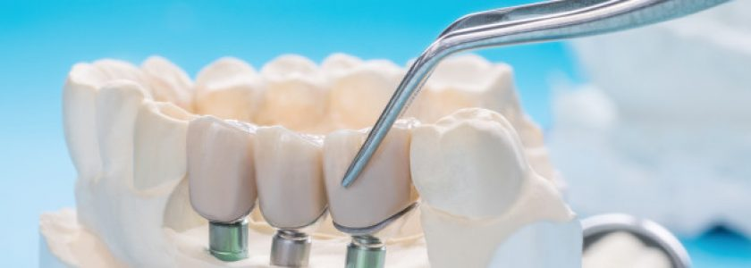 La importancia de no retrasar la colocación de un implante - Clínica Manuel Rosa