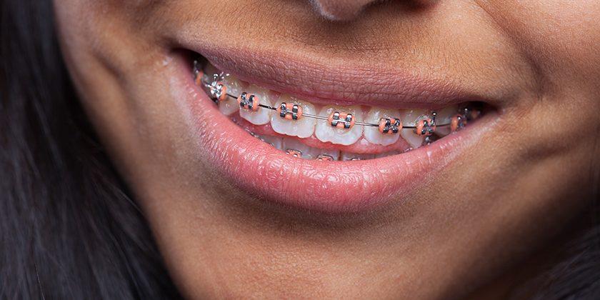 Ortodoncia para adultos ¿Cuál es la ortodoncia más recomendada para mí? - Clínica Manuel Rosa