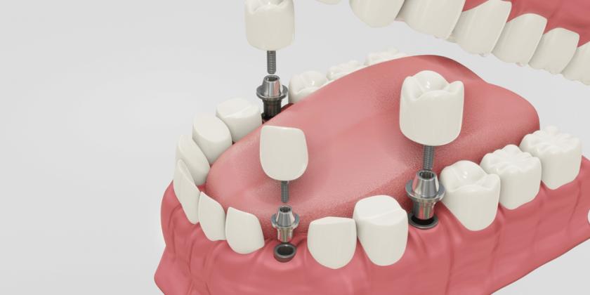 ¿Conoces los implantes con cirugía guiada? - Clínica Manuel Rosa