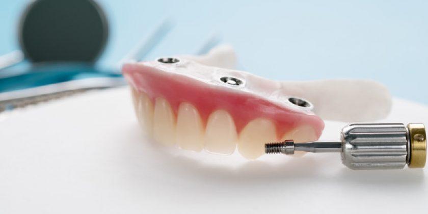 Implantes de carga inmediata - Clínica Manuel Rosa