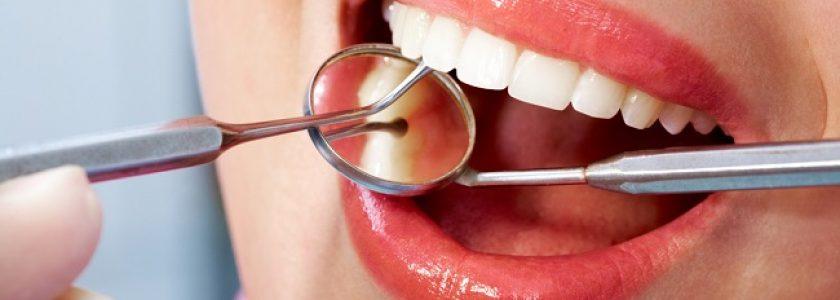 La importancia de realizarse una limpieza bucal. - Clínica Manuel Rosa
