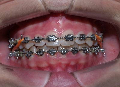 Ortodoncias: tipos y características. - Clínica Manuel Rosa