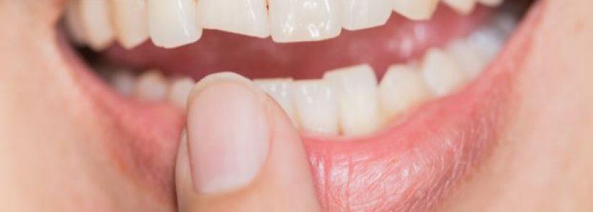 Endodoncia: el tratamiento para salvar tus dientes - Clínica Manuel Rosa