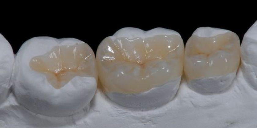Incrustación, la mejor manera de reconstruir una pieza de endodoncia - Clínica Manuel Rosa