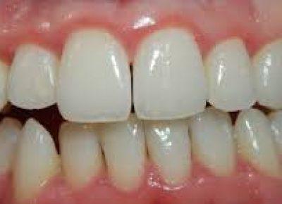 Gingivitis y periodontitis, ¿Qué son y cómo diferenciarlas? - Clínica Manuel Rosa