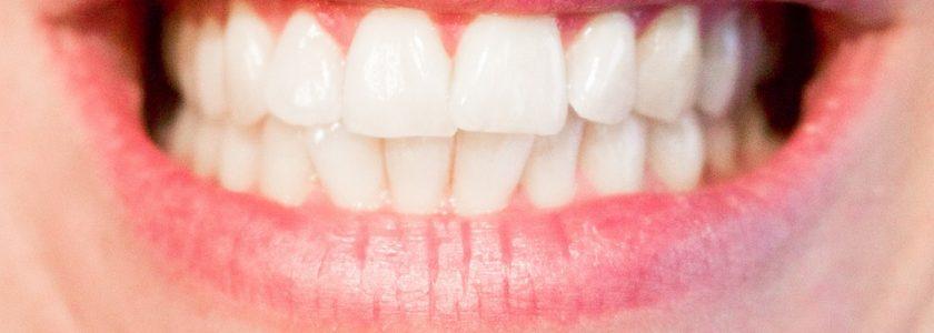 Lo que el estrés puede hacerle a tu boca - Clínica Manuel Rosa
